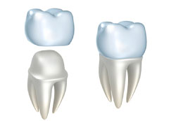 CEREC crowns at Gary L. Glasband, DDS Dentistry